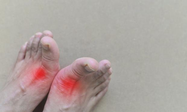Time to recognise gout as a chronic disease